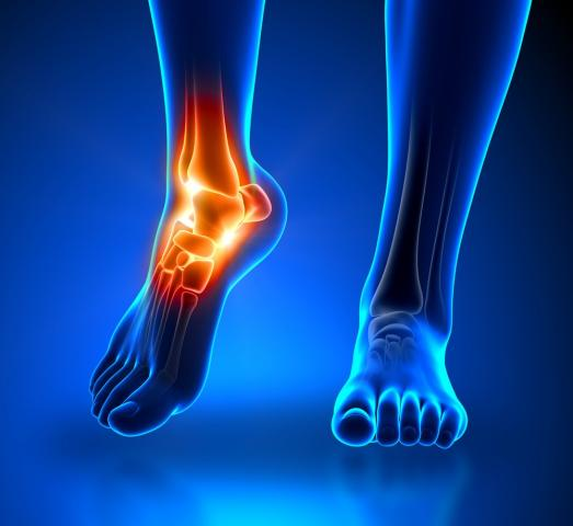 Rental and Sales of foot & Ankle injury products Port Alberni Vancouver Island